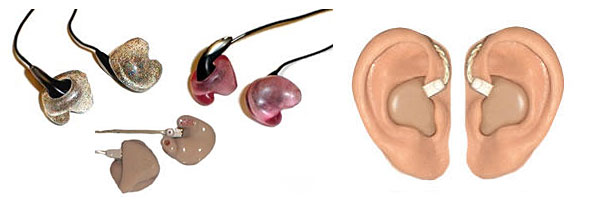 Different types of earmolds
